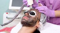 روشن سازی پوست با لیزر کربن