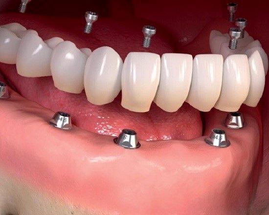 انواع عمل های زیبایی دندان