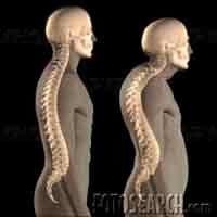 درمان قوز پشت با ورزش