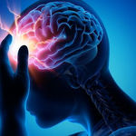 چگونه سردرد تنشی را درمان کنیم؟