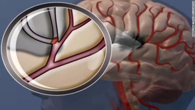 درمان سکته ی مغزی از طریق دارو