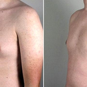 ورزش هایی برای کوچک شدن سینه در آقایان