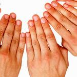 آرتریت روماتویید چیست