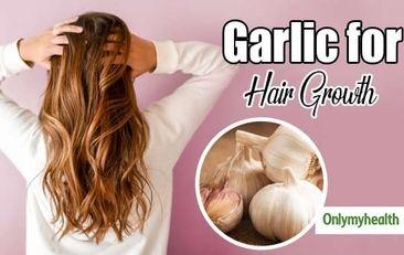 روش های استفاده از سیر برای درمان ریزش مو